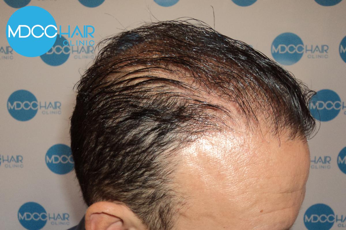 Mdcc Hair Clinic 2 Micropigmentation Du Cuir Chevelu